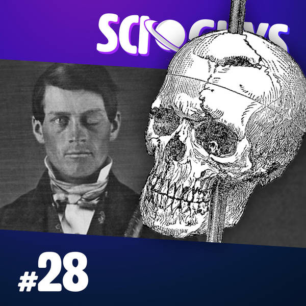 28: The Curious Case of Phineas Gage